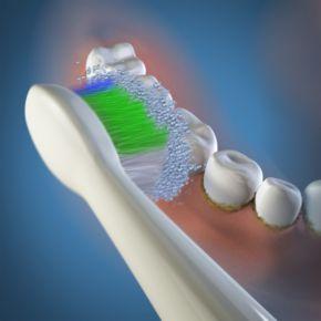 Waterpik Sensonic 3-pk. Complete Care Standard Replacement Brush Heads